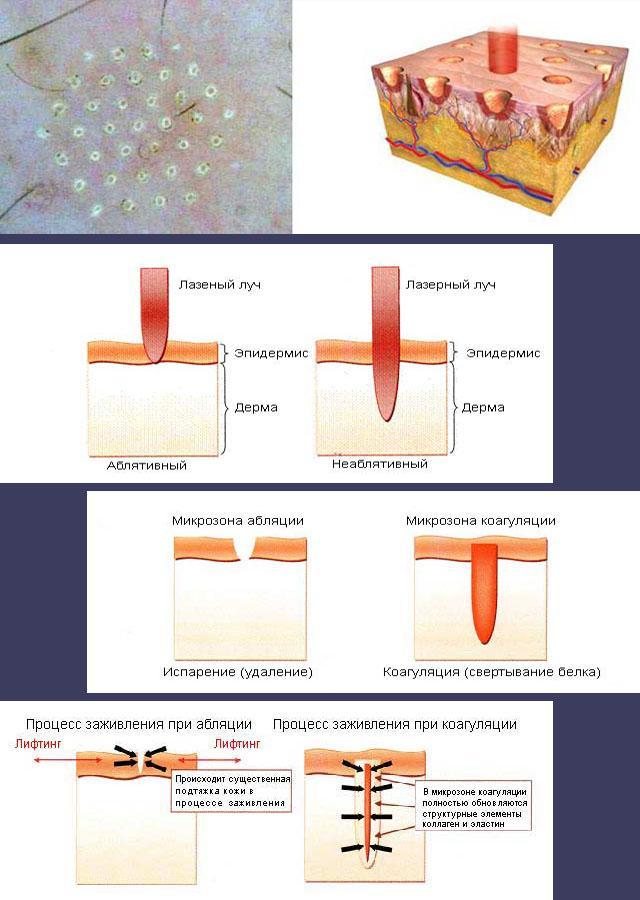 Фракционное лазерное омоложение – прогрессивный метод омоложения