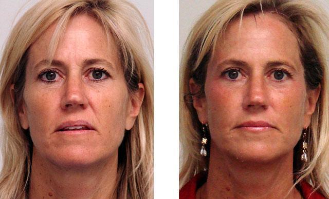 Какие бывают процедуры лифтинга кожи лица