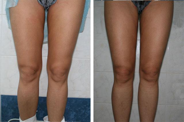 Эффект от лазерной липосакции коленей