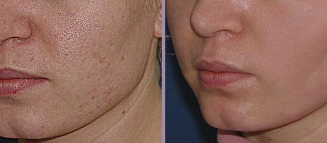 результаты лазерного пилинга лица