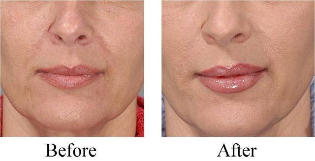 филлер Juvederm Ultra Smile