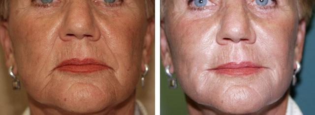 филлер радиесс: фото до и после