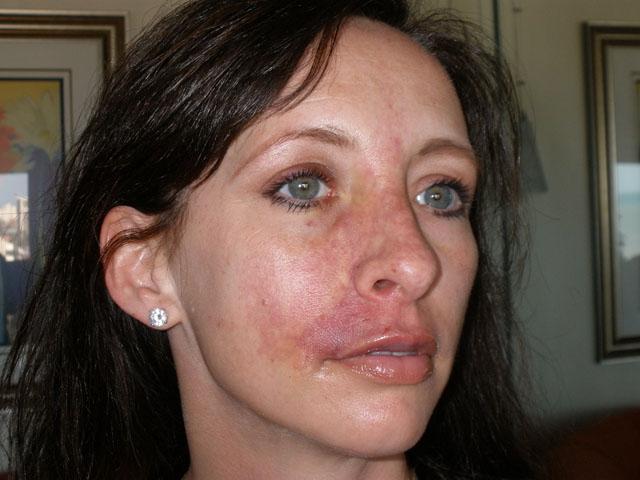 сколько дней колоть супрастин при аллергии взрослым