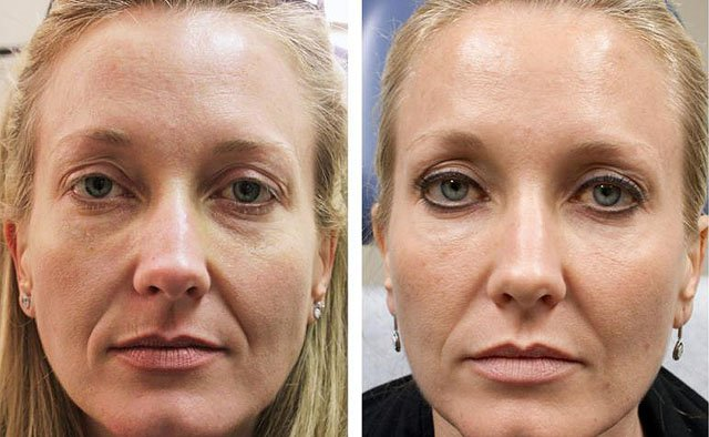 Фото инъекции красоты до и после