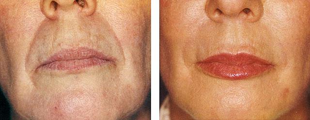 коррекция носогубных складок restylane