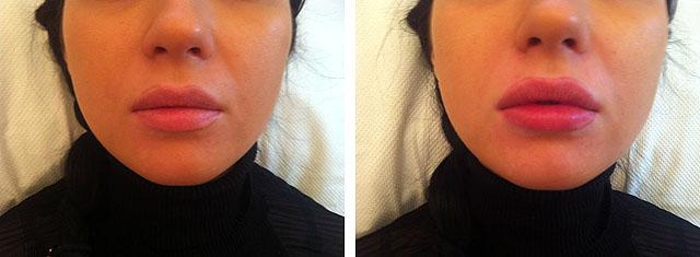 увеличение губ филлерами