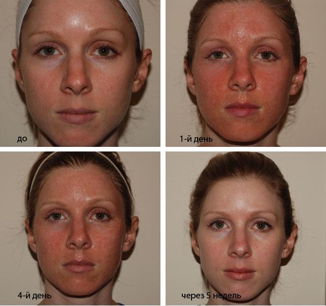 Как Очистить Лицо От Пятен После Прыщей В Домашних Условиях