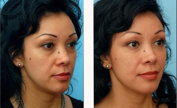биоревитализация вокруг глаз фото до и после