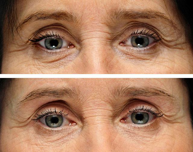 введение гиалуроновой кислоты в слезную борозду и область вокруг глаз