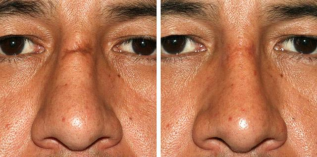 до и спустя 8 месяцев после глубокой дермабразии