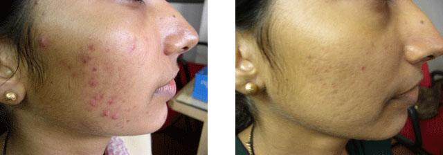 лечение акне салициловой кислотой