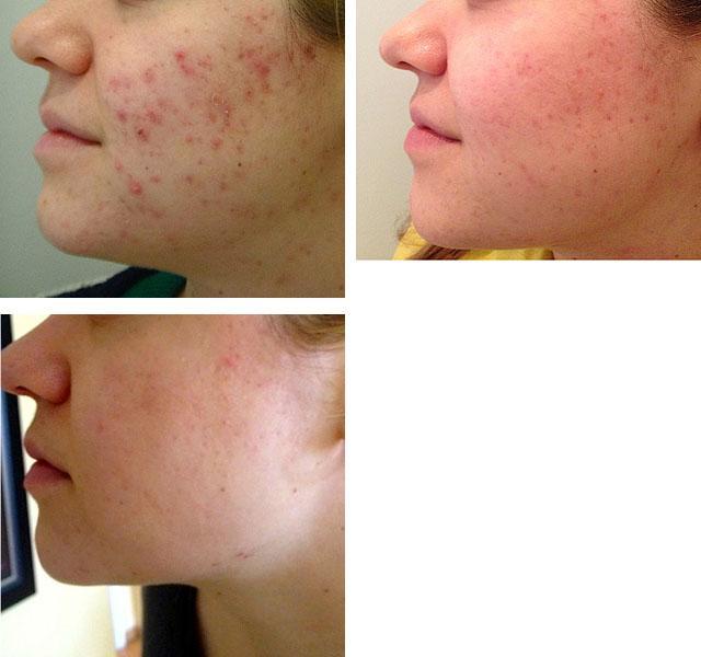 Атопический дерматит на лице как помочь