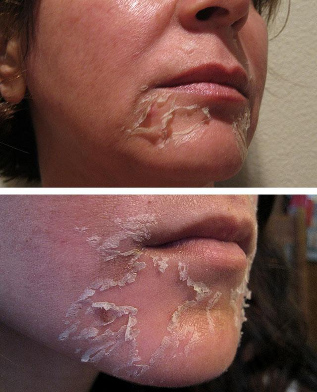 аллергия после пилинга лица фото