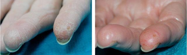 газожидкостный пилинг кожи рук