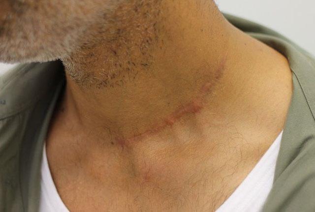 келоидный рубец после 10 сеансов лазерной дермабразии