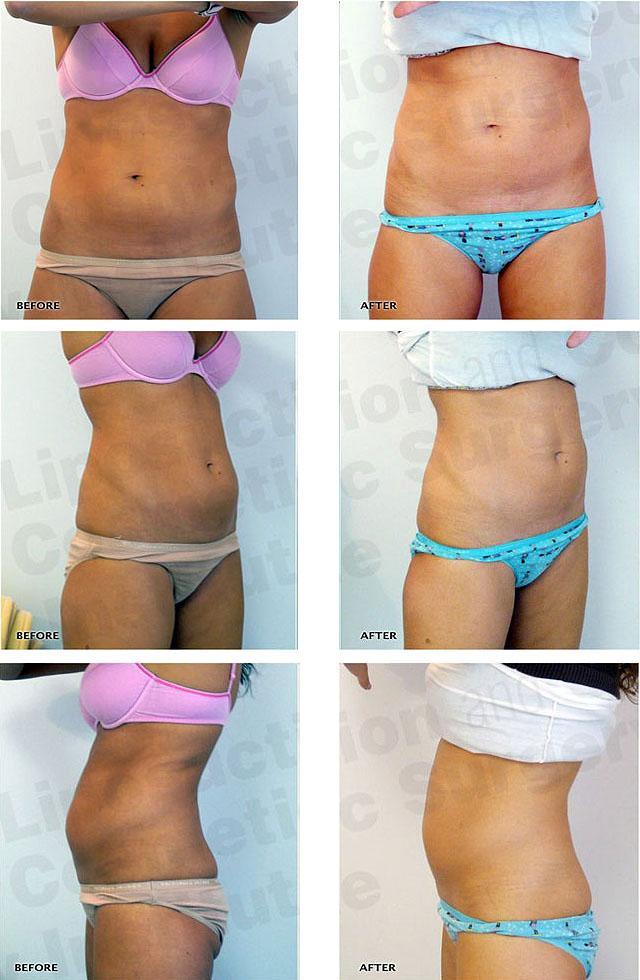 убрать жир живота помощью обертывания