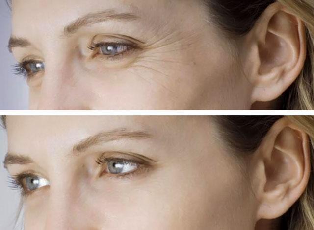 Мезотерапия лица: что это такое, эффект, фото до и после