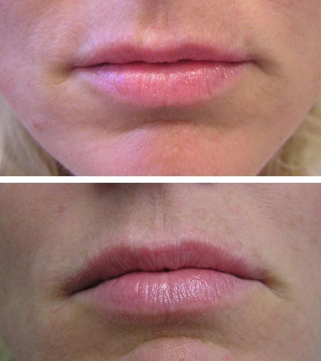 Увеличение губ гиалуроновой кислотой вред