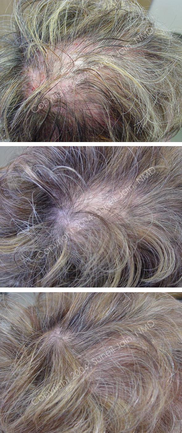 Revivor бальзам против выпадения волос