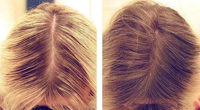 Кокосовое масло для волос натуральное купить в
