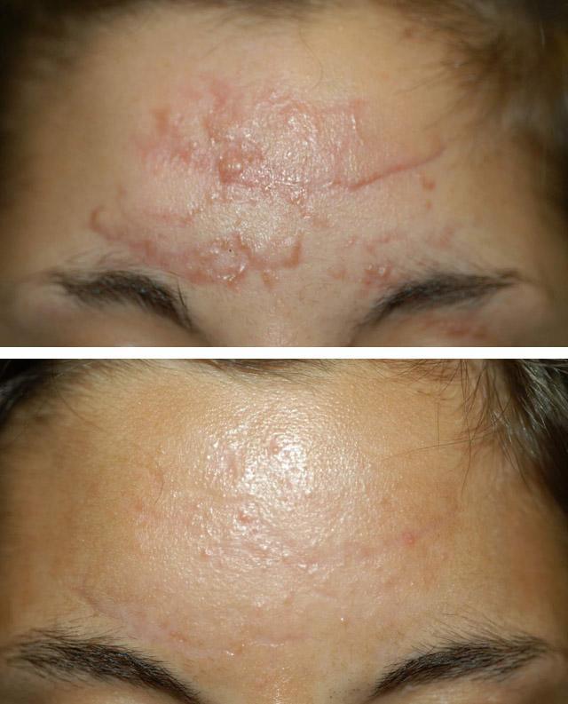 нормотрофические рубцы до и после механической дермабразии