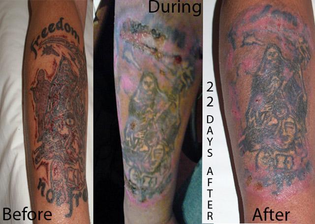 после первого сеанса лазерной шлифовки татуировки