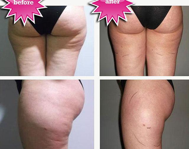 как похудеть после беременности и убрать живот
