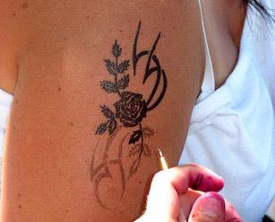 удаления татуировок лазером