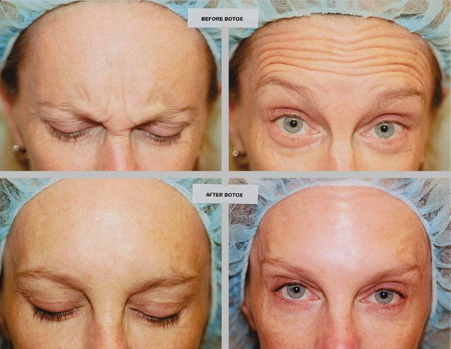 фото до и после ботокса