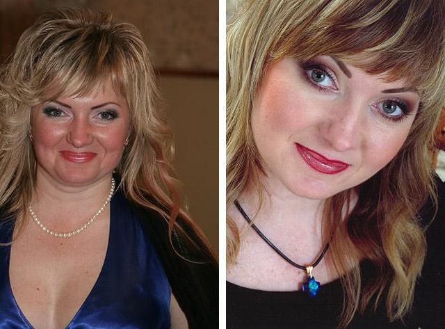 фото до и после наноперфорации лица