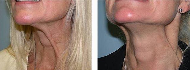 инъекции ботулотоксина в область шеи