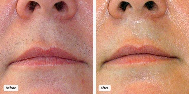 эпиляция лазером области верхней губы 4 сеанса
