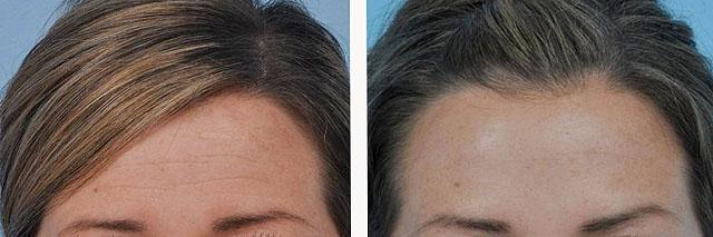 коррекция морщин на лбу и выравнивание линии бровей