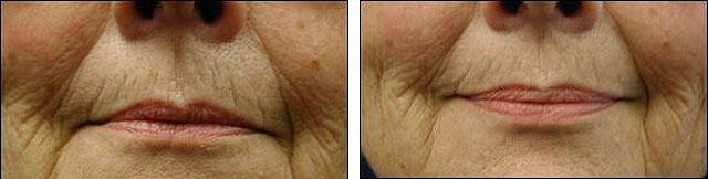 коррекция морщин периоральной области