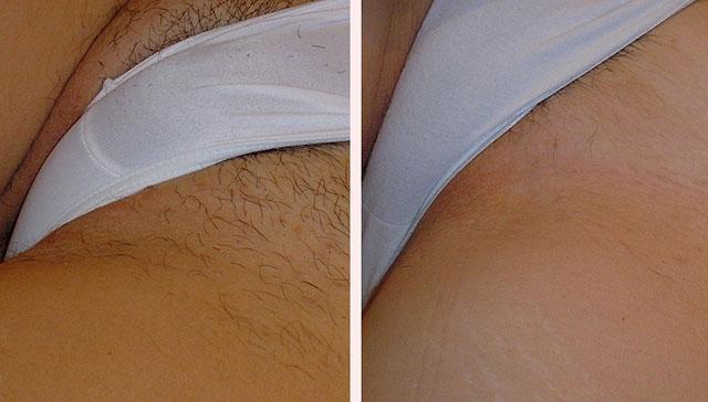 От чего появляются бородавки на теле и как их лечить