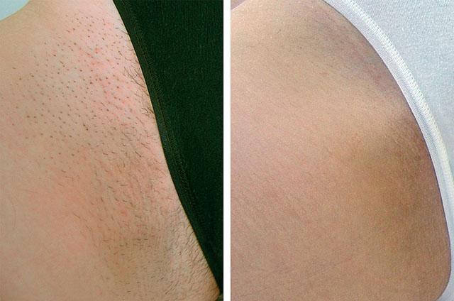 Как влияет лазерная эпиляция на вросшие волосы лазерная эпиляция soprano xli