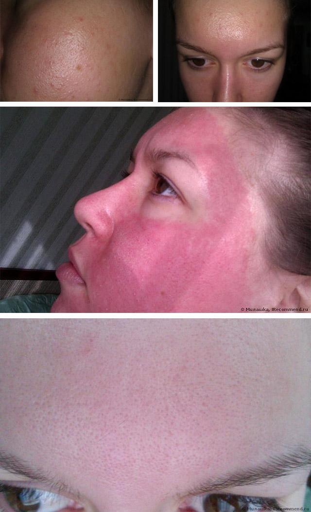 лазерная наноперфорация кожи