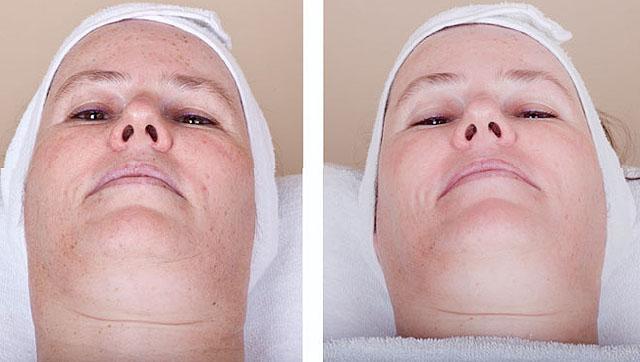 после 3 процедур элос омоложения лица