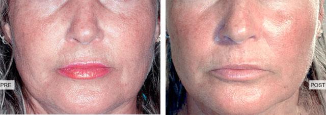 после 3-х процедур биореуитализации лица