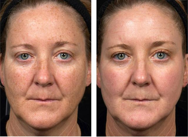 процедура фраксель: до и спустя 2 недели