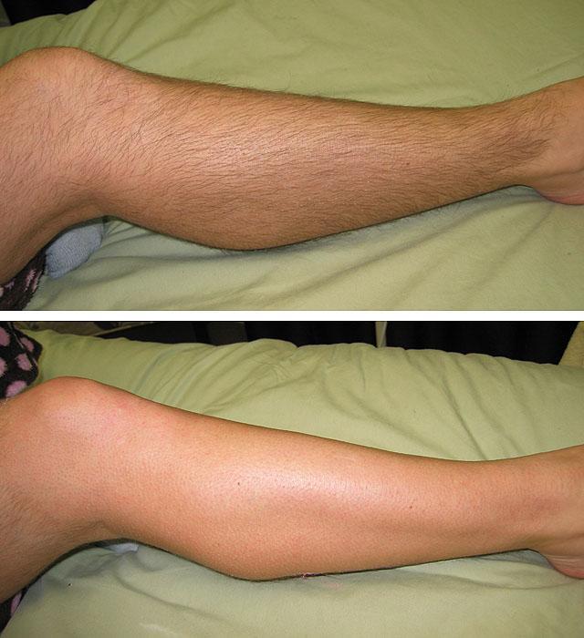 Как сделать так чтобы было не больно эпилировать ноги