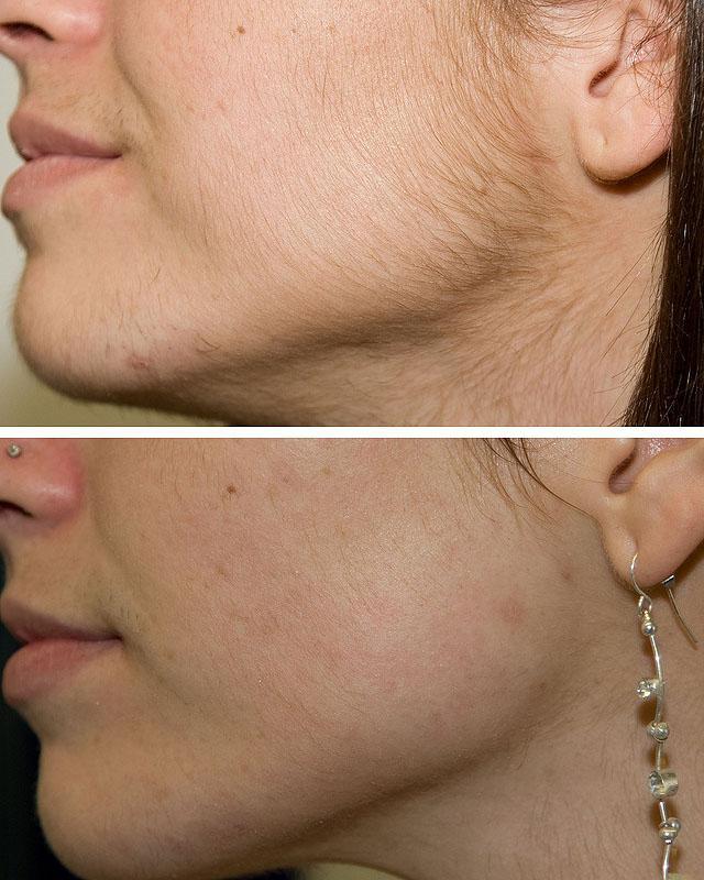 эпиляция волос на лице у женщин цена
