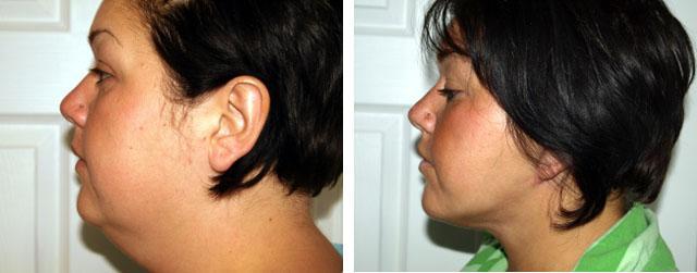 удаление жировых отложений с области шеи и нитевая подтяжка