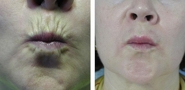 уколы ботулотоксина в область вокруг губ