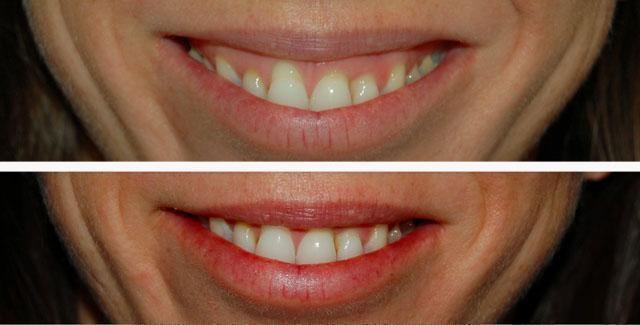 уколы ксеомина в верхнюю губу