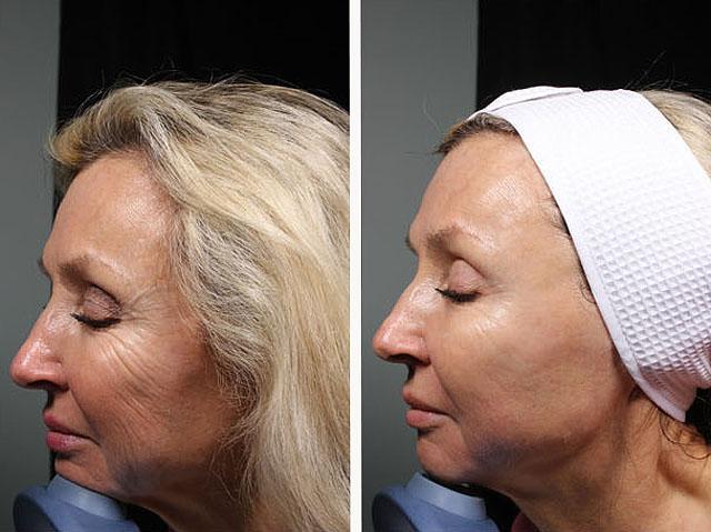 ультразвуковая терапия кожи лица
