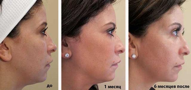 ультразвуковой лифтинг кожи лица