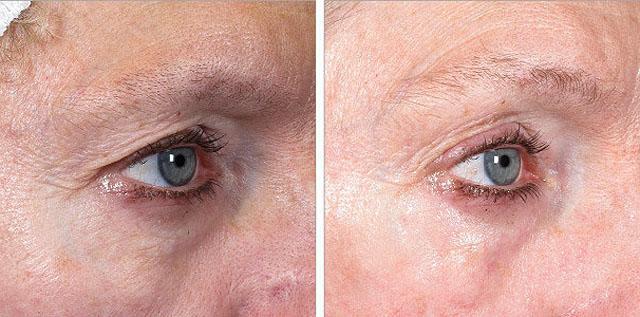 ультразвуковой лифтинг области вокруг глаз