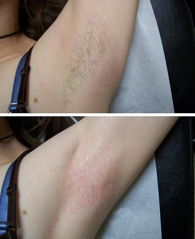 Длина волос восковая эпиляция