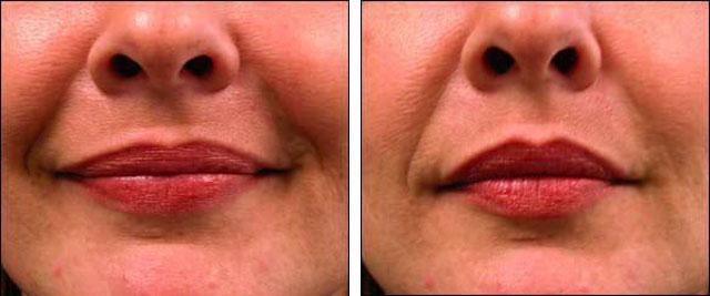 введение ботокса в губы